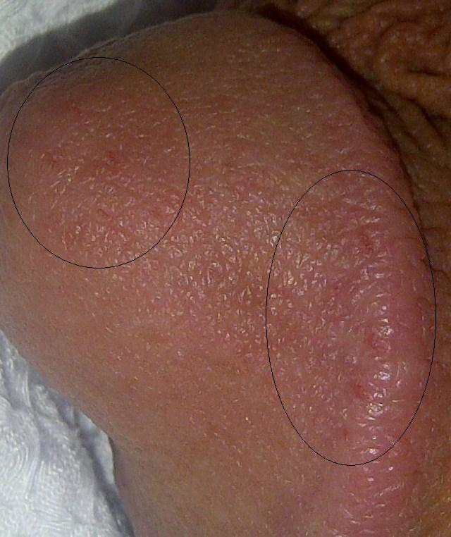 small pimples on penis head