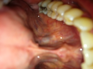 Floor of Mouth - Cancerous?