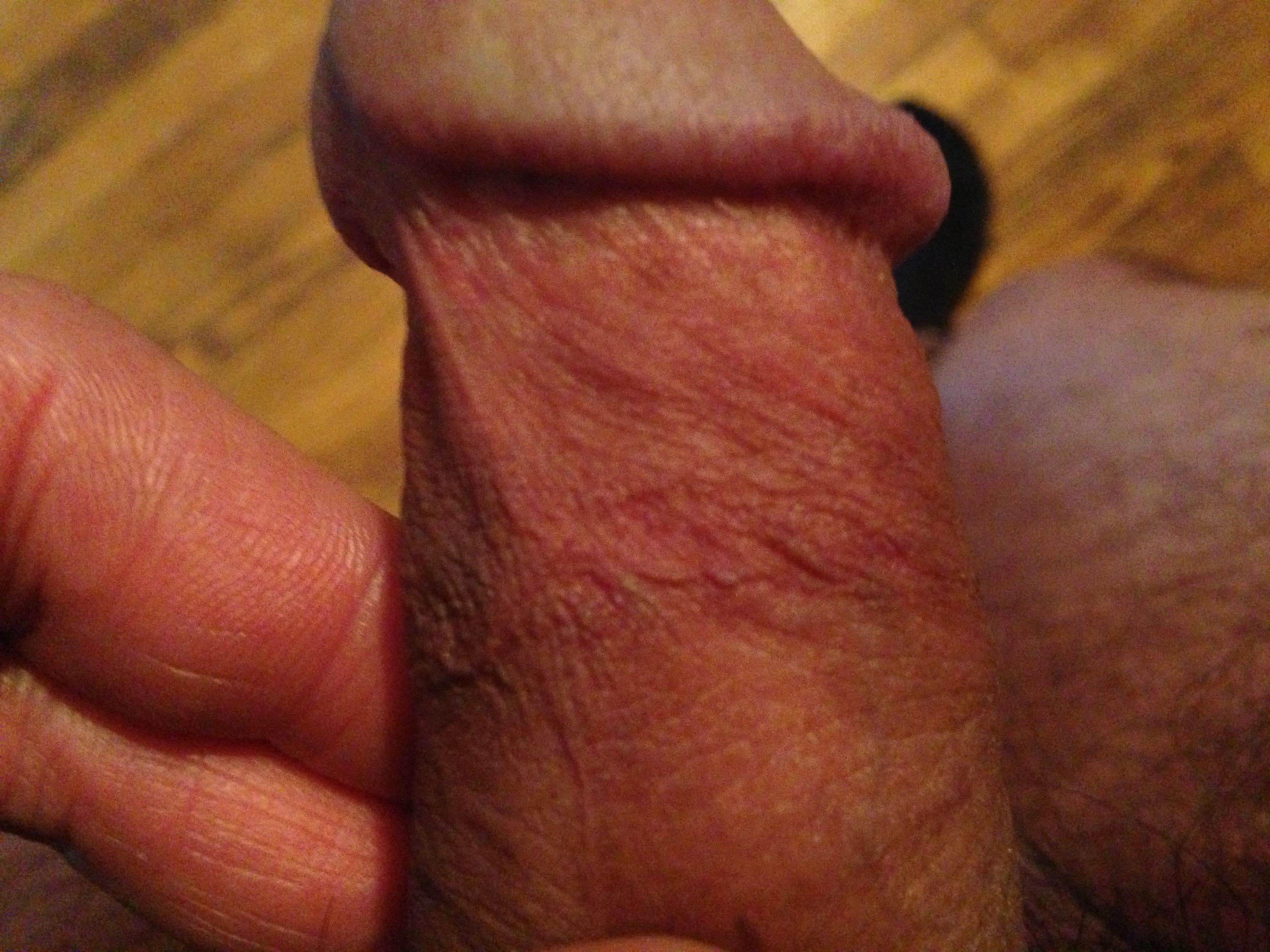 Bruise On Penis 115