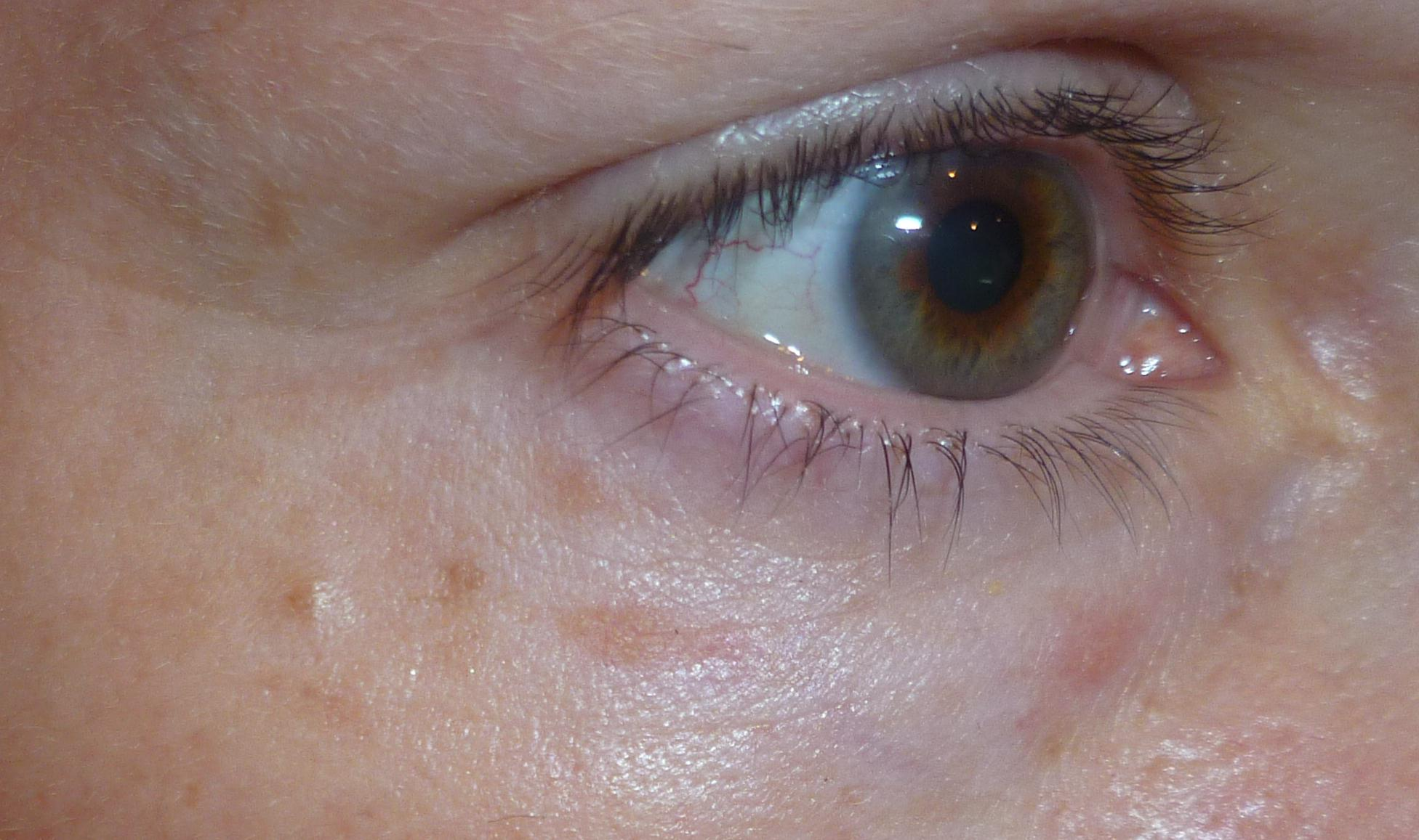 Under Eye Skin Lesions – Home Exsplore