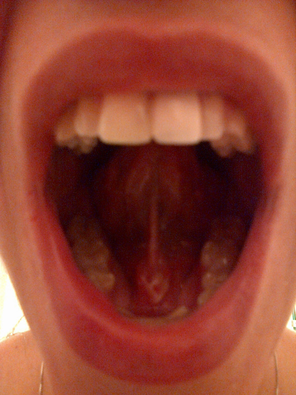 Canker Sore Under Tongue Images | Healthy HesongBai