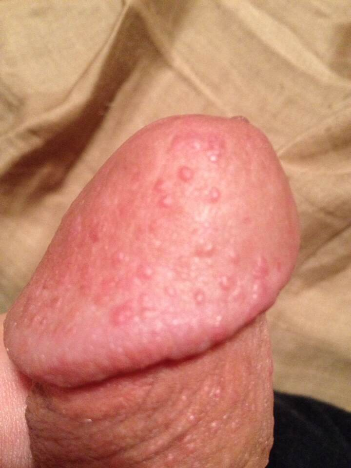 penis near red bumps