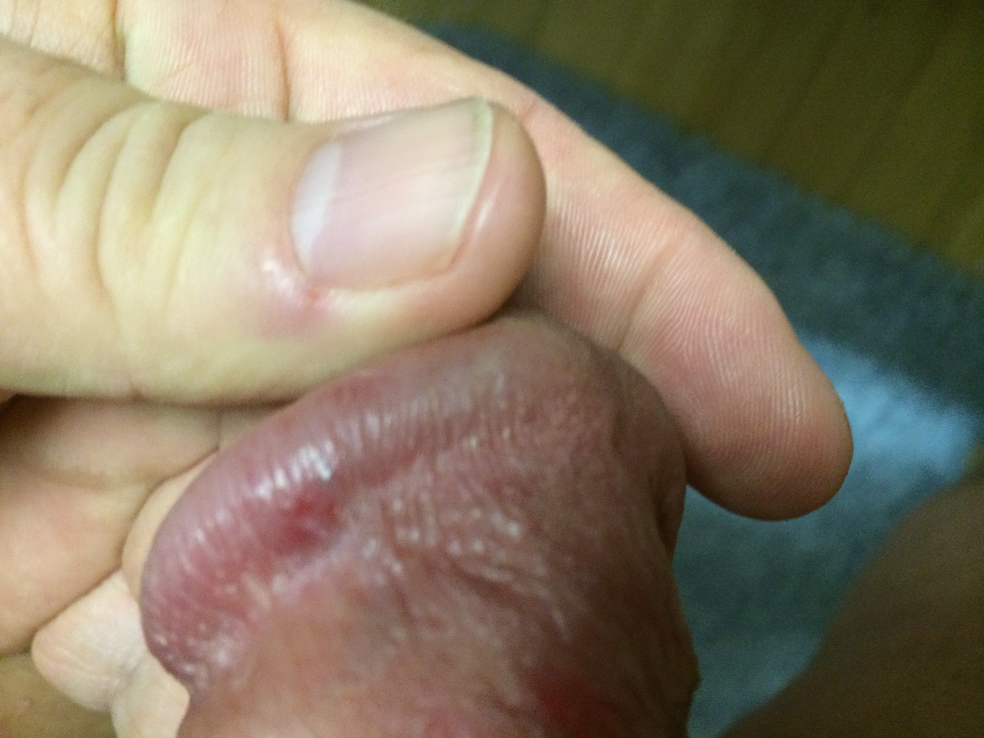 Zit On My Penis 93