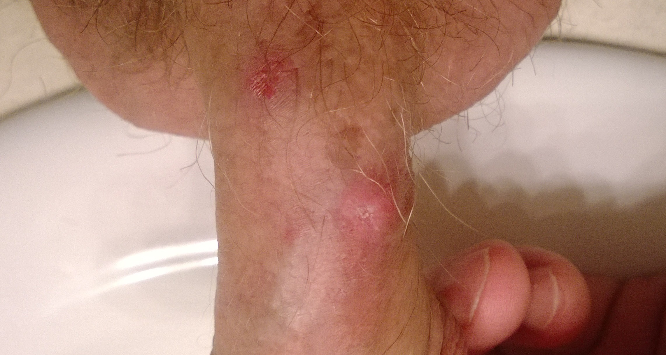 Pictures of anal folliculitis