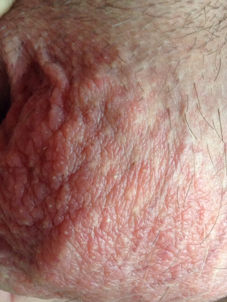 blood in semen ruptured penis jpg 422x640