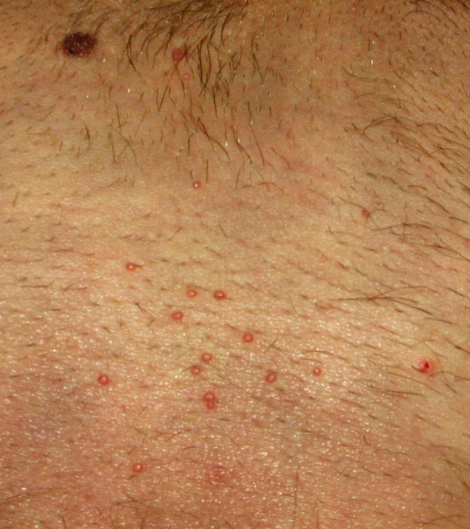 A Rash Has Appeared Just Below My Waistline, And It Has Me