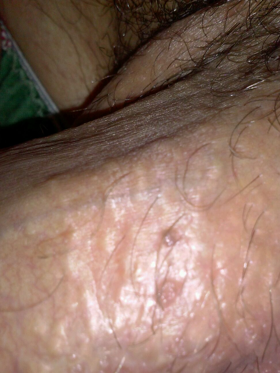 Brown Bumps On Penis 67