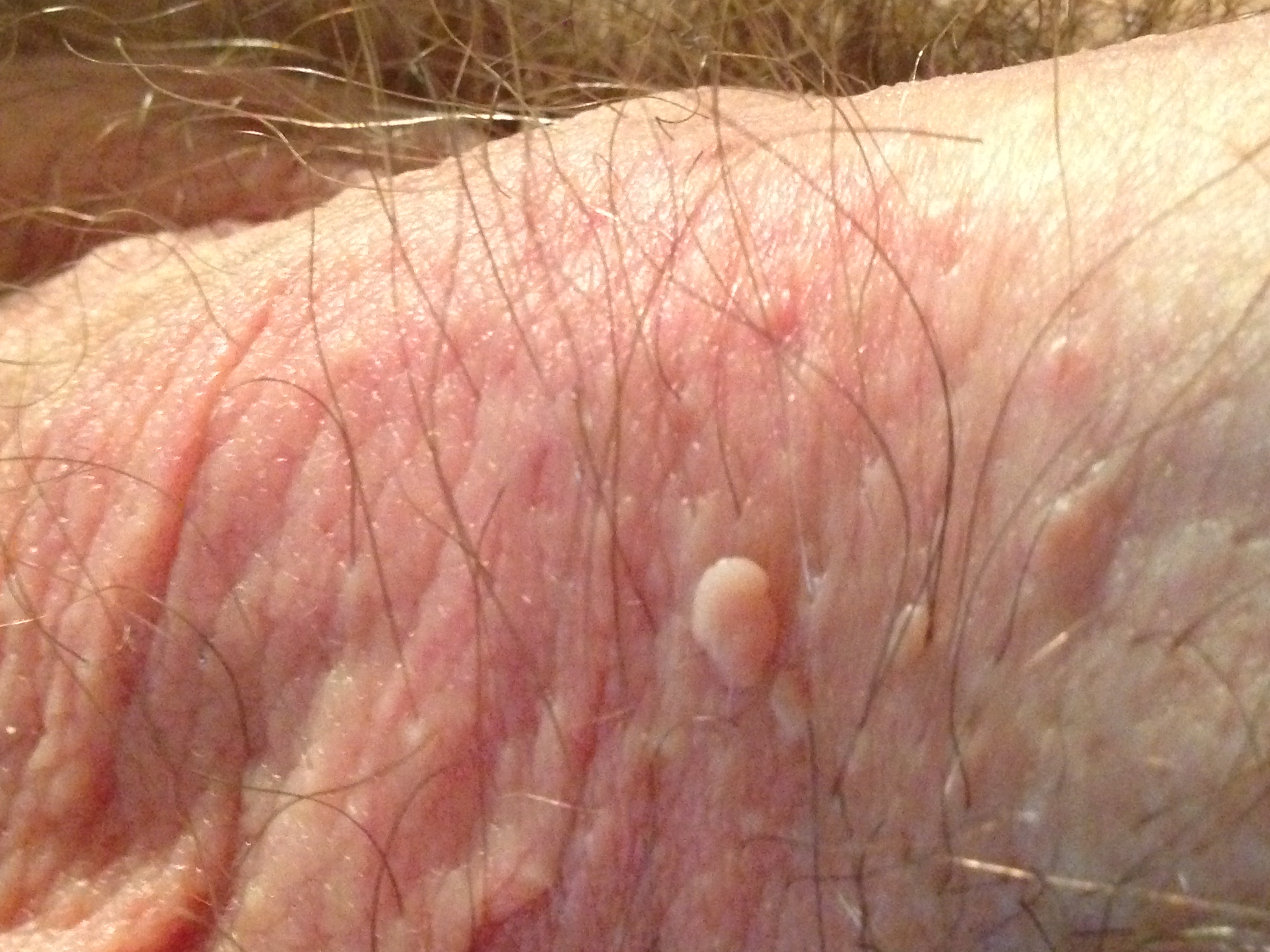 Scabies on the penis