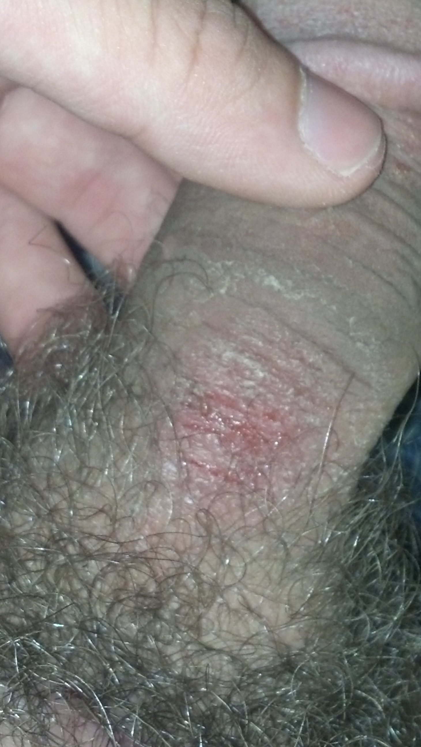 Cuts On My Penis 70