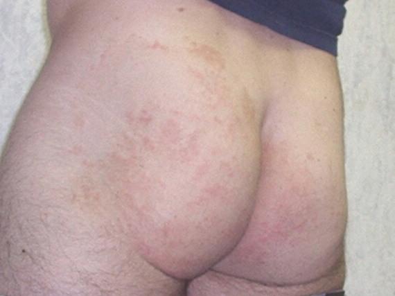 Dry Skin On Butt 104