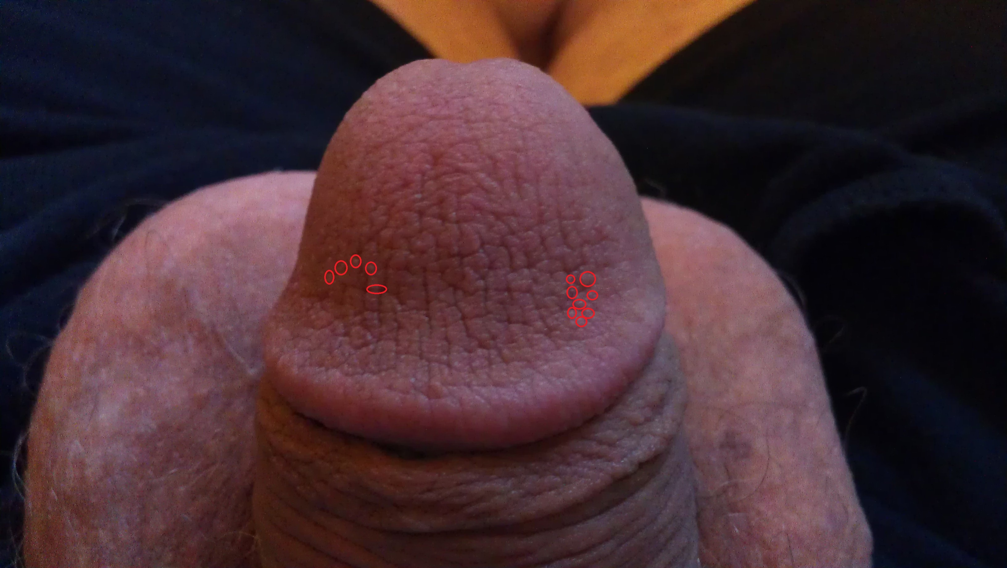 tiny red bumps on penis head