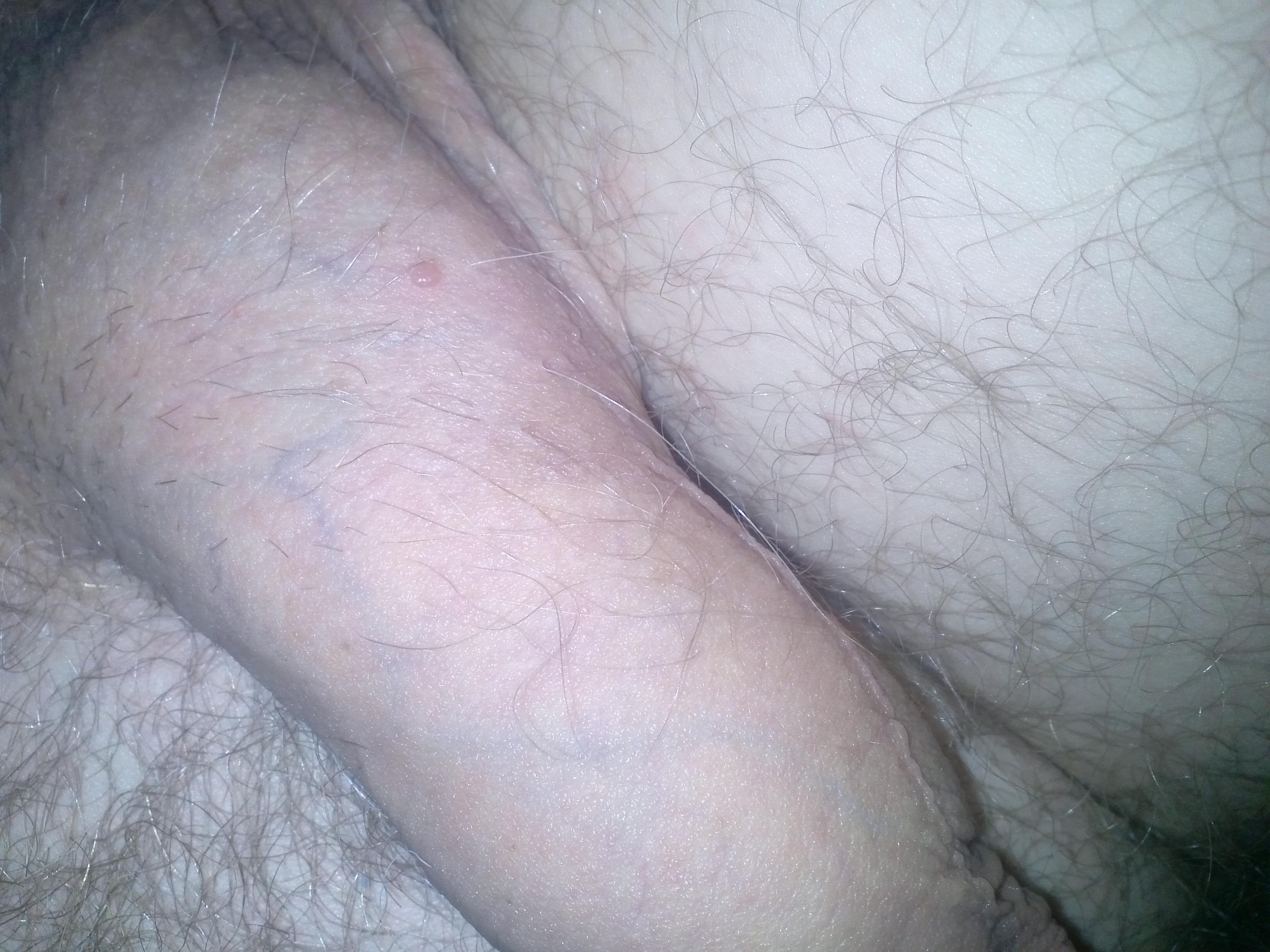 on black penis mole
