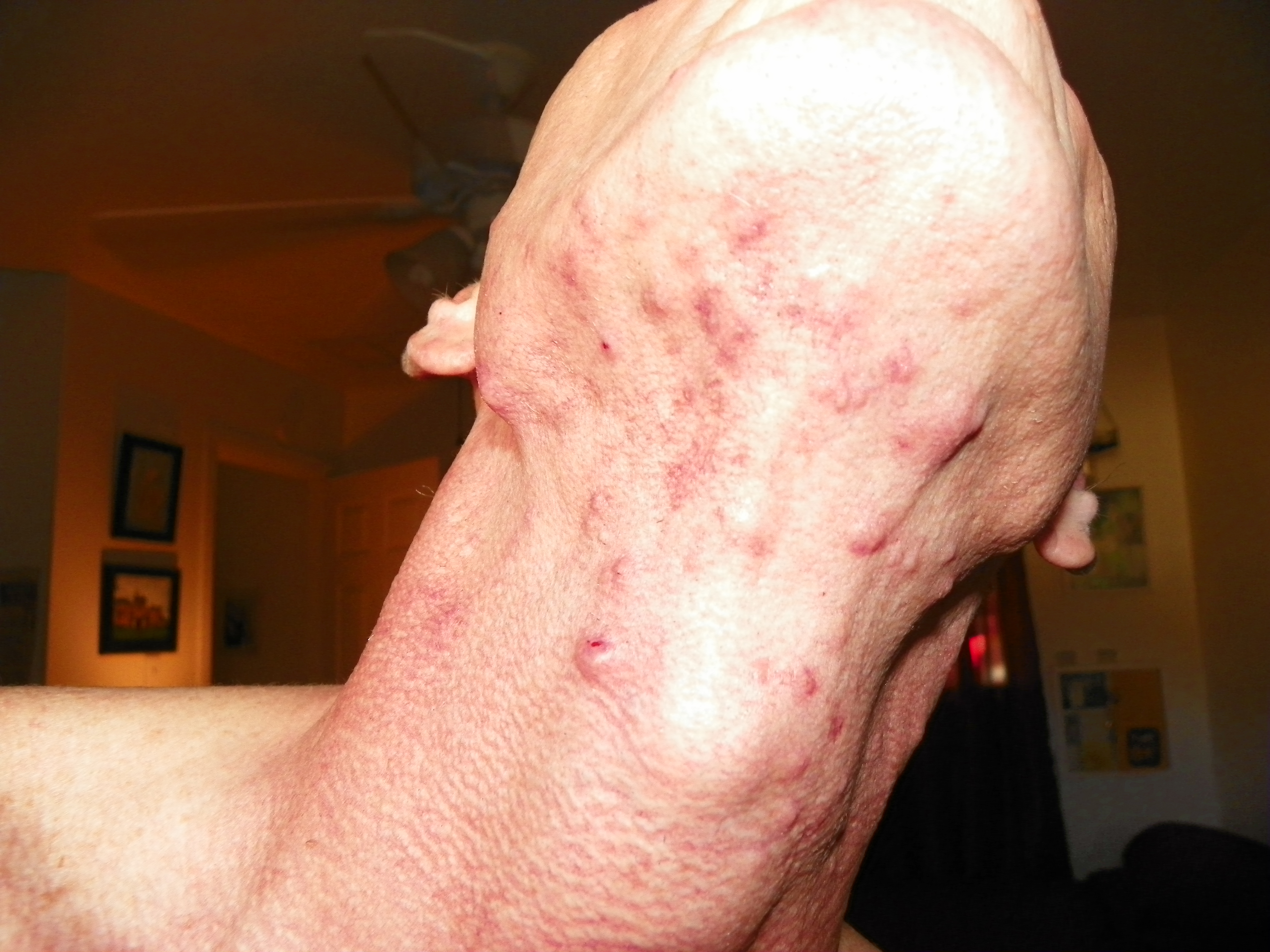 what do pimples on your neck mean