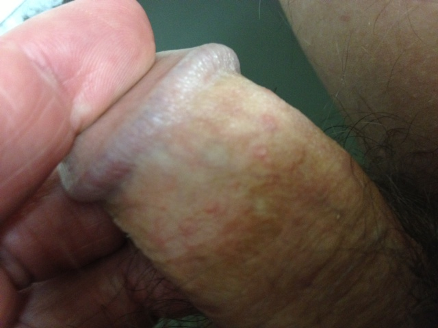I Have Red Dots On My Penis 49