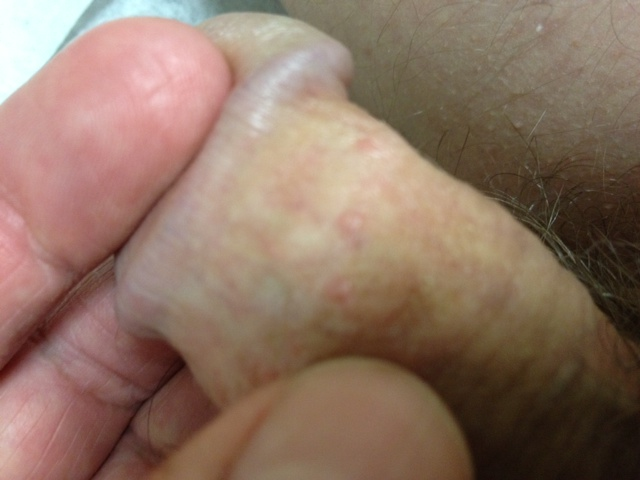 I Have White Dots On My Penis 31