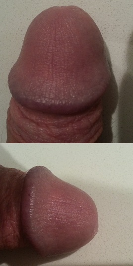 Scaly Penis 16