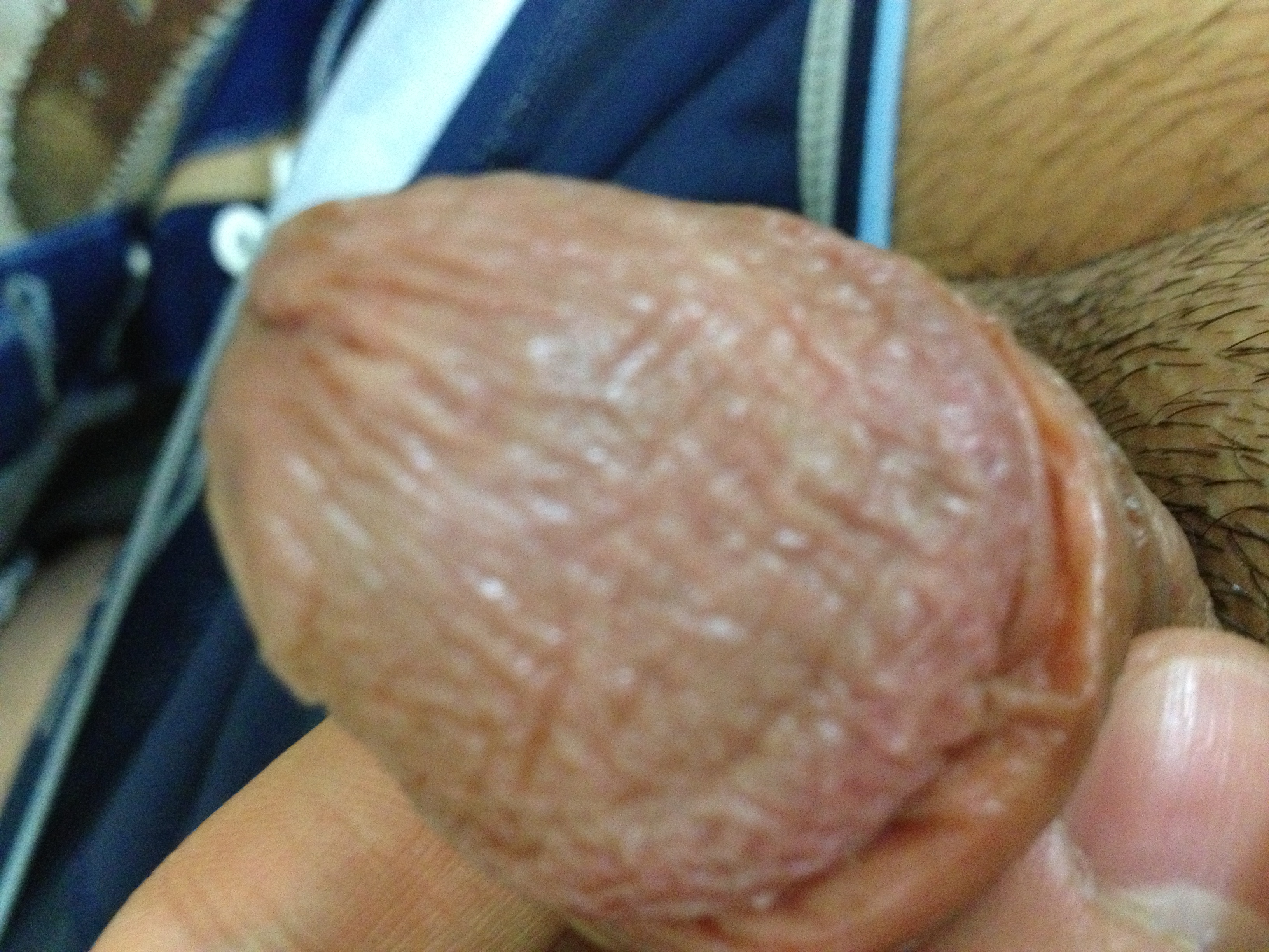 Peeling skin on penis head