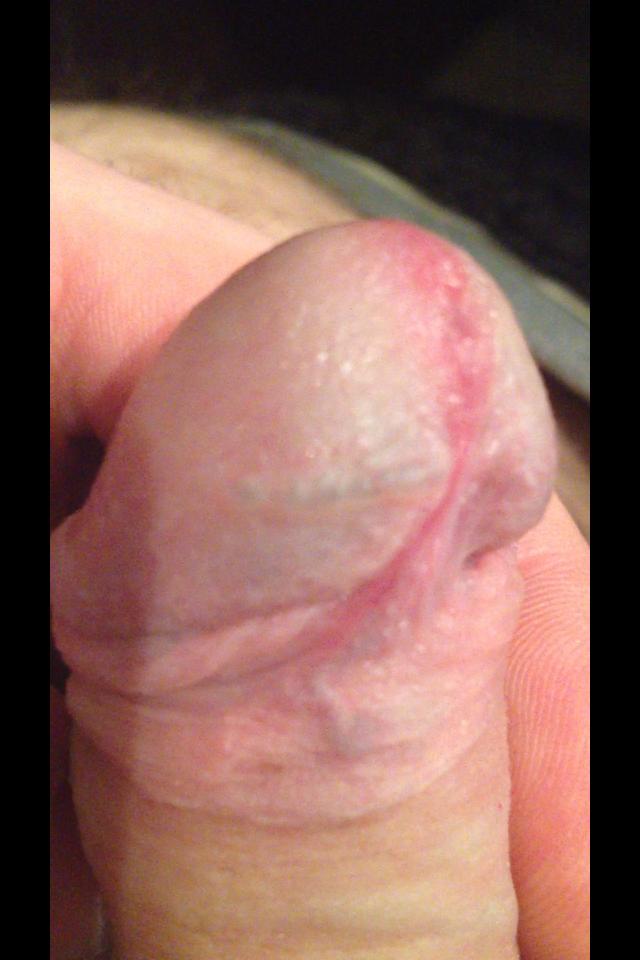 Big Vein In Penis 73