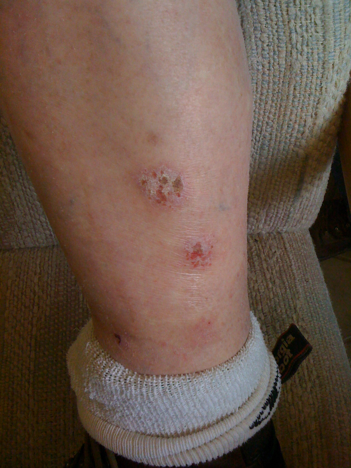 Bacitracin Cream I have itchy scabs on ...