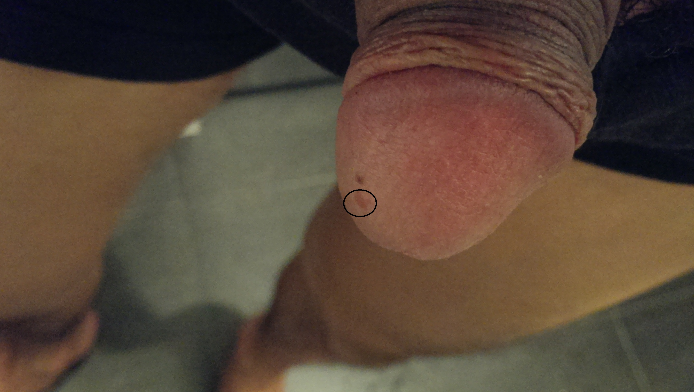 Opinion you red spots on my penis head something also