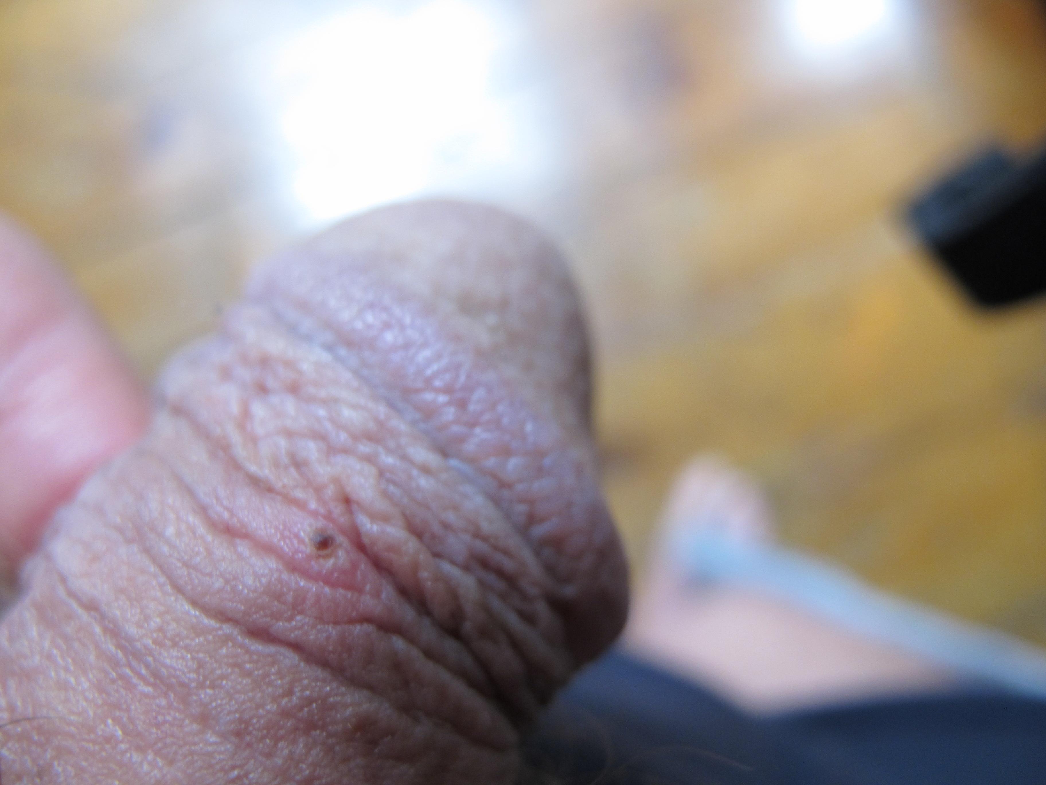 Red Irritated Penis 11