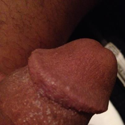 Found site White bumbs on penis sorry