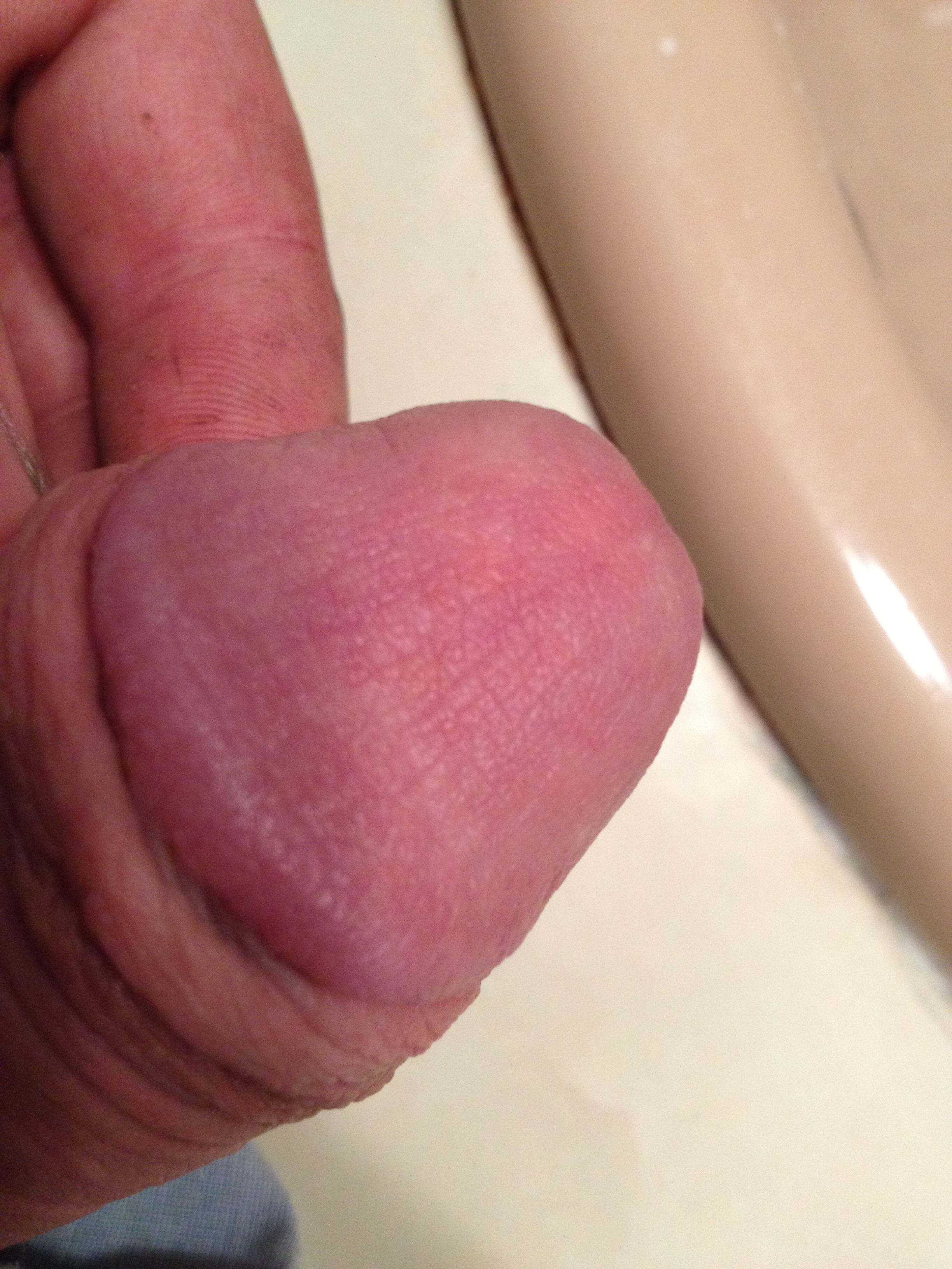 Red irritated skin penis causes