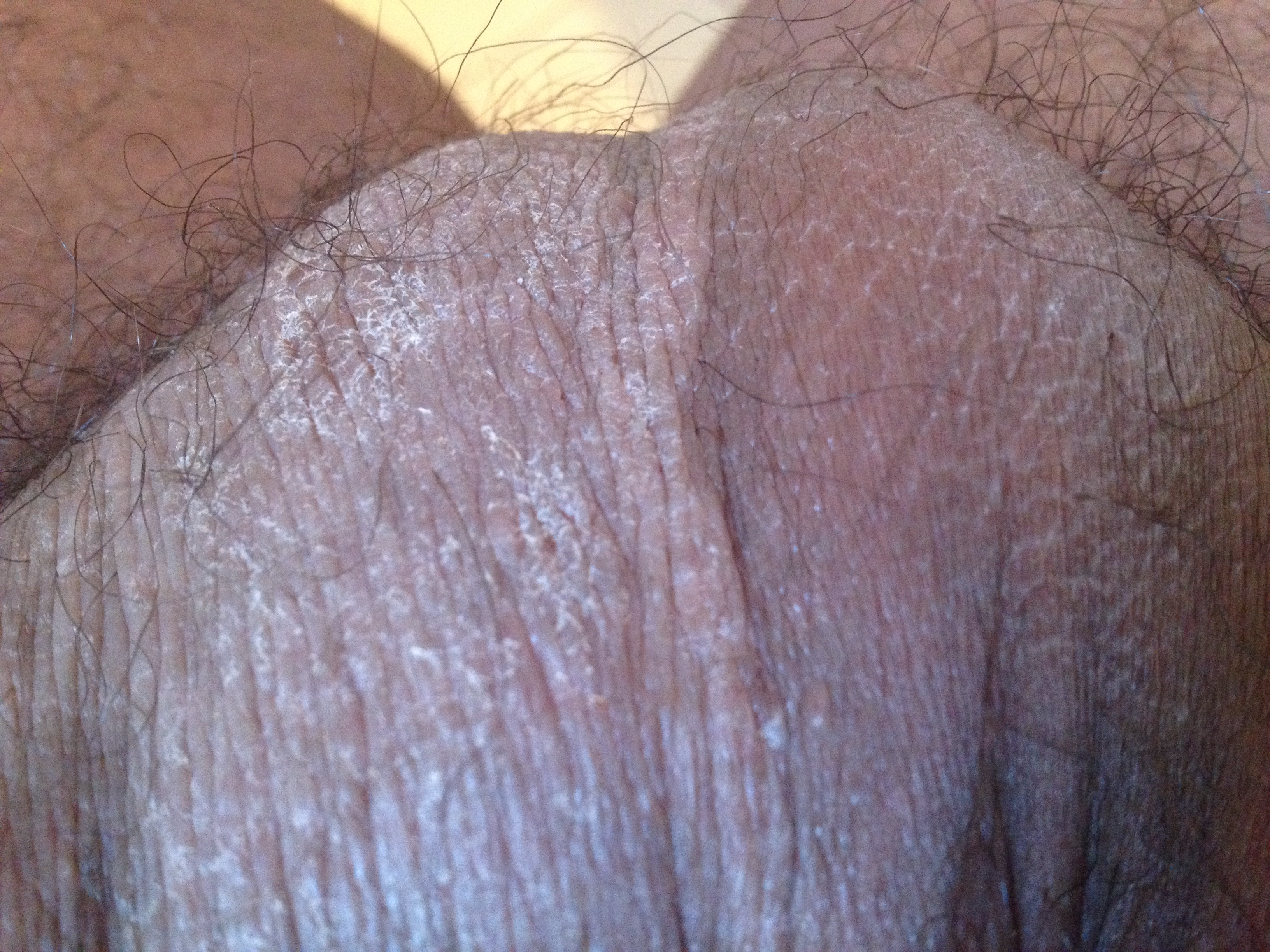 Eczema On Scrotum – images free download