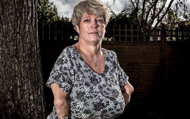 Thalidomide survivor Simone Illger