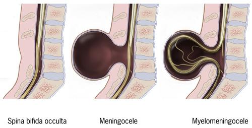 types of spina bifida