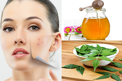 Home remedies for beautiful skin