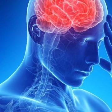 Sjqghk5st4wkmmi7qkh6_brain%20headache