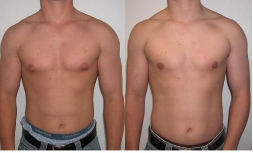 Puffy Nipples Treatment | Posts by springclinic | Bloglovin