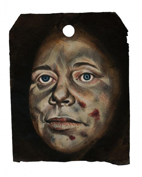 Stotik - bruised face