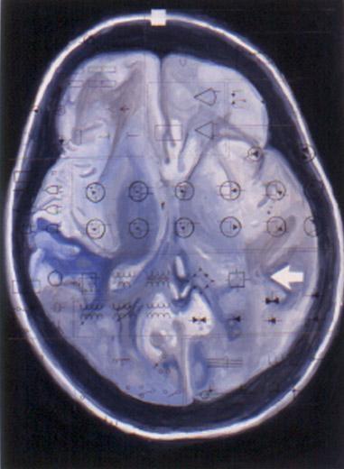 Blue Brain, 2000