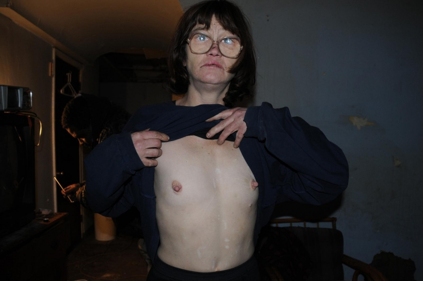 Zoe Strauss - Eileen Showing Sternum Scar, 2001-2008  | Bruce Silverstein Gallery
