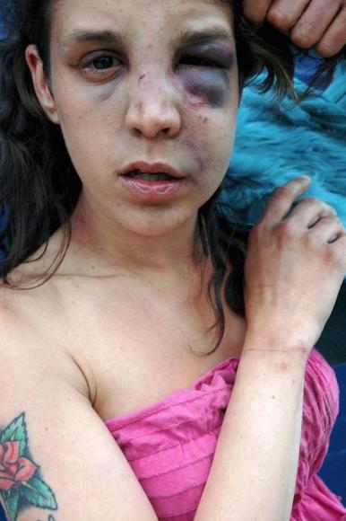 Zoe Strauss-  Monique Showing Black Eye, 2001-2006    Bruce Silverstein Gallery