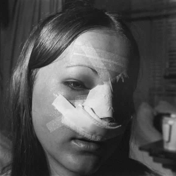 Nose, Baroness Erlanger Hospital, Chattanooga, Tennessee, 1976 	Gelatin silver print, printed c. 2007, 	19 3/4 x 15 7/8 in.