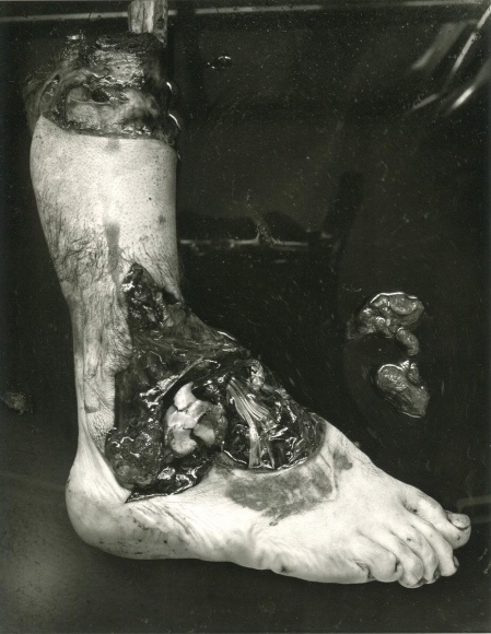Frederick Sommer - Untitled (Amputated Foot), 1939 Gelatin silver print mounted to board, printed c. 1980s | Bruce Silverstein Gallery