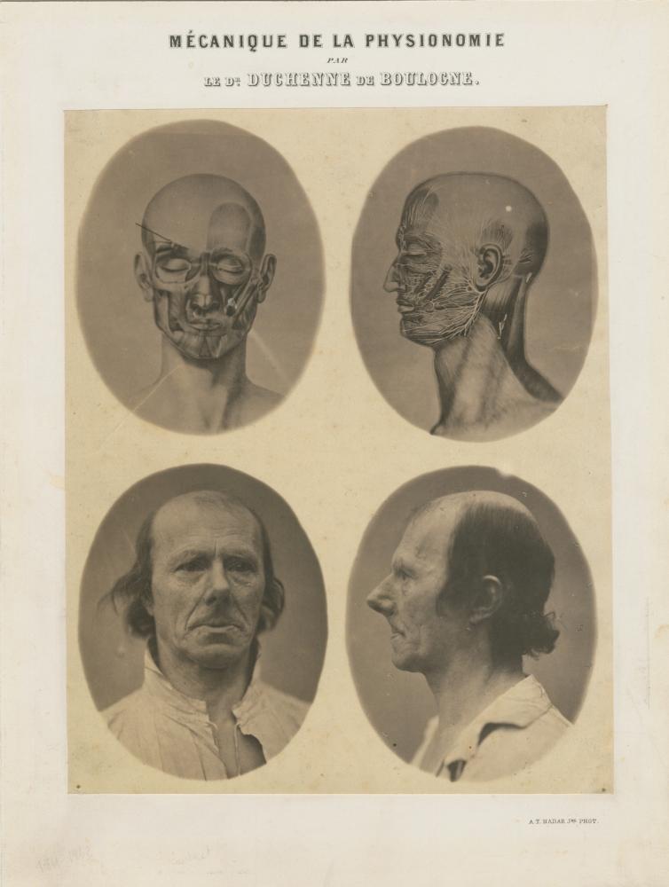 "DUCHENNE DE BOULOGNE and Adrien TOURNACHON (French, 1806-1875 & 1825-1903) ""Mécanique de la Physionomie"", before March 1857 Coated salt print from four collodion negatives Four images, each 10.4 x 8.3 cm, trimmed oval, on 25.6 x 18.0 cm paper, mounted on 29.4 x 22.3 cm card Titled and credited ""par le Dr Duchenne de Boulogne"" and ""A.T. Nadar Jne phot."" on the mount"