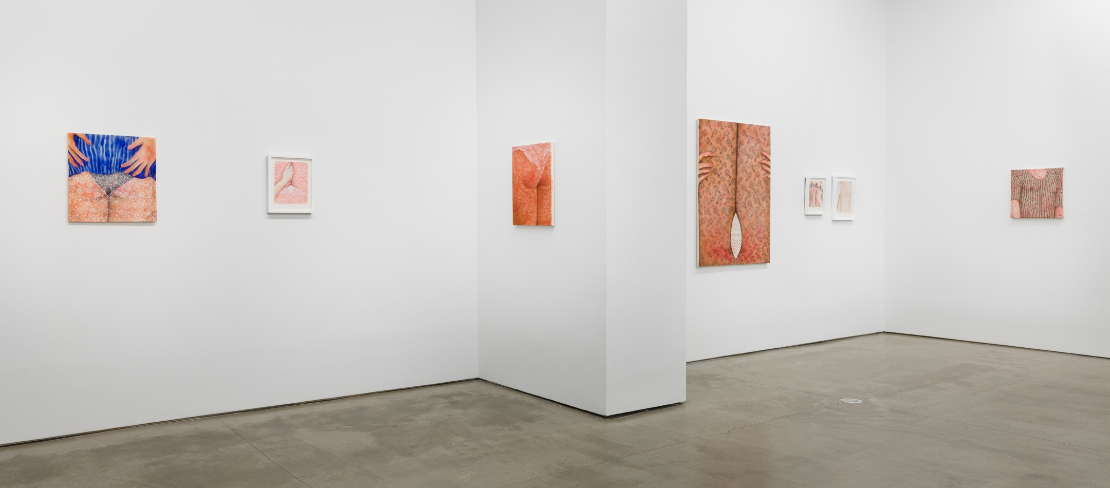 "Installation view of Katarina Riesing, ""Razor Burn"""