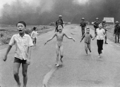 Nick Ut- Severely Burned in an Aerial Napalm Attack