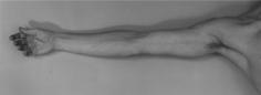 "Robert Mapplethorpe, ""Arm, 1976"", 16 x 20 inch Gelatin silver print (printed 2005), Edition of  10"