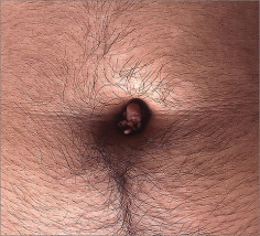 Ham Jin. Aewan #1015, 2004. C-print photograph of polymer clay sculpture on the artist's belly button, Size of photo: 155 x 125.5 cm, size of sculpture: 1 cubic cm (approximate).Courtesy of the artist & PKM Gallery.