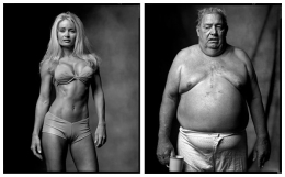 Fitness Model / Heart Surgery Patient, 2002 / 2005, 20 x 32-1/2 Diptych, Archival Pigment Print, Ed. 20