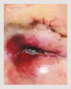 hate crime, DG Krueger, Burke's stitched brow