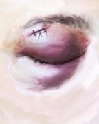 hate crime, DG Krueger, Damian's eye