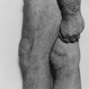 Side View, Knees with Fist, 1984