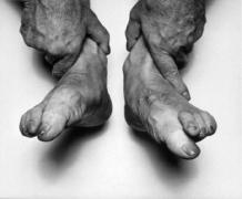 John Coplans  Self Portrait (Hands Holding Feet)  1985