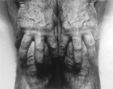 Self Portrait (Hands Spread on Knees)